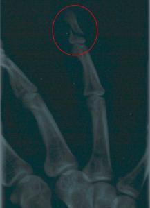 Frattura della falange distale, IV dito DX